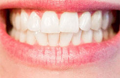 Invisible-Teeth-Straightening1
